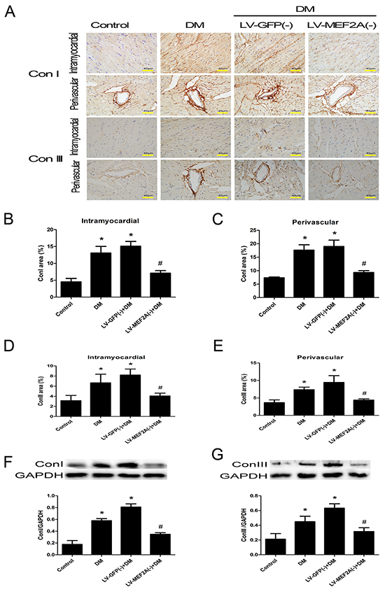 MEF2A inhibition limits diabetes-induced collagen deposition in a diabetic mouse model.