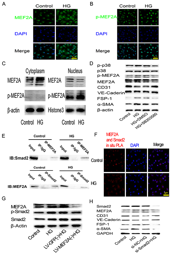 HG-induced EndMT is mediated by the translocation of MEF2A to the cytoplasm and interactions with p38 MAPK and smads in HUVECs.