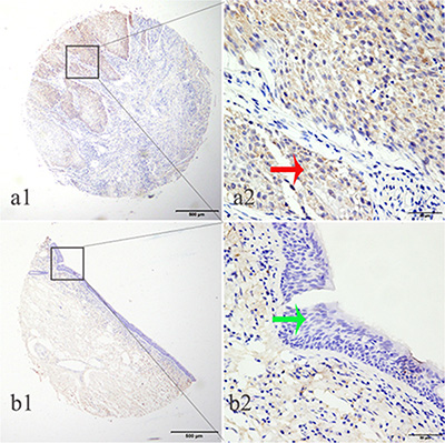 LTBP2 protein was detected in HNSCC tissues but not in adjacent normal tissues.