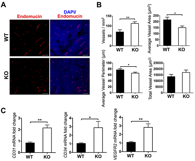 Characterization of vasculature in tumors from WT and ATS1-KO mice.