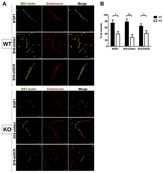 Evaluation of functionality of vasculature of tumors derived from control and modified B16F1 cells in WT and ATS1-KO mice.