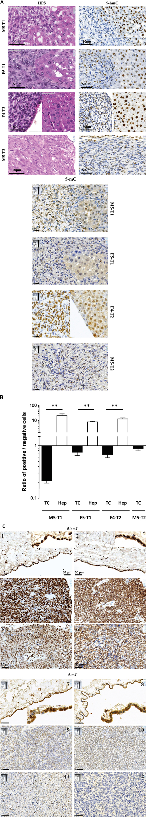 Immunohistochemical staining for 5-hmC of rat and human mesotheliomas.