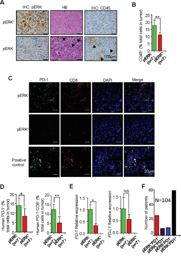 Increased inflammation and intratumoral PD-1+CD8+ T lymphocytes in pERK- HCC samples.