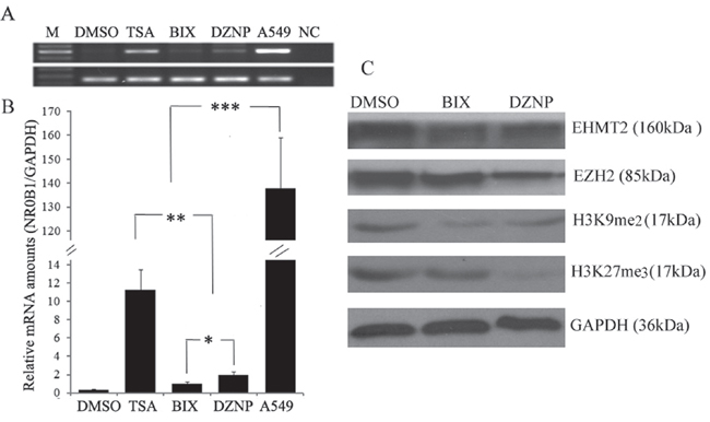 Effect of histone demethylation on NR0B1 expression.