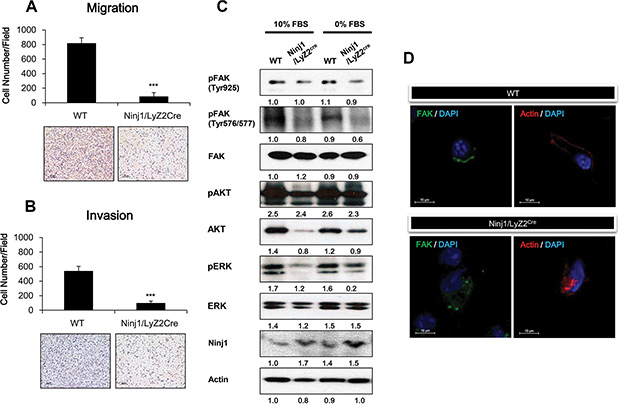Ninjurin 1 overexpression on macrophage decreases macrophage migration and invasion through inhibition of FAK activity.