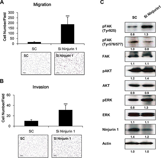 Depletion of ninjurin 1 from RAW264.7 cells increased macrophage migration and invasion, and enhanced FAK activity.