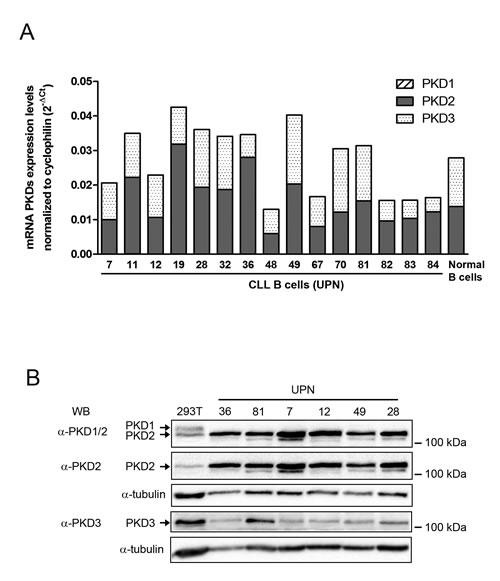 PKD2 and PKD3 are expressed in CLL cells.
