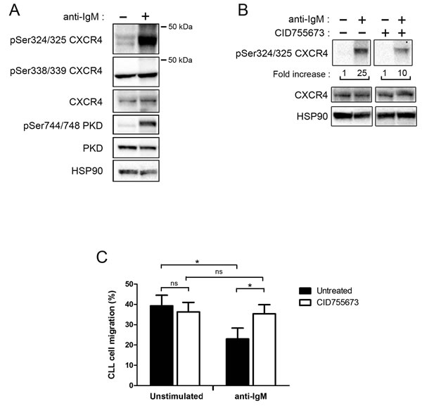 BCR engagement allows CXCR4 phosphorylation and reduces CLL migration toward CXCL12
