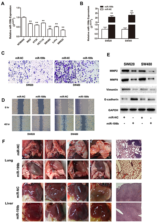 Metastasis suppressive effects of miR-199b in CRC cell lines in vitro and in vivo.