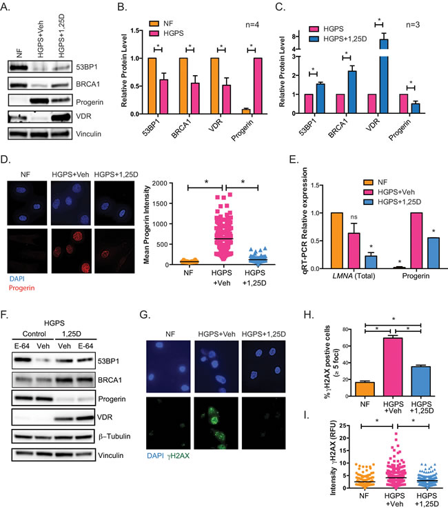 Phenotypes of HGPS cells are rescued by vitamin D.