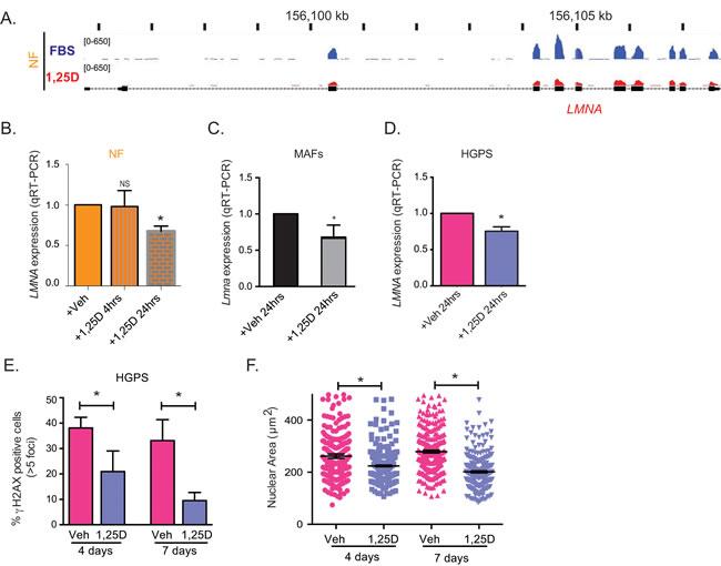 Regulation of LMNA gene expression by vitamin D/VDR.