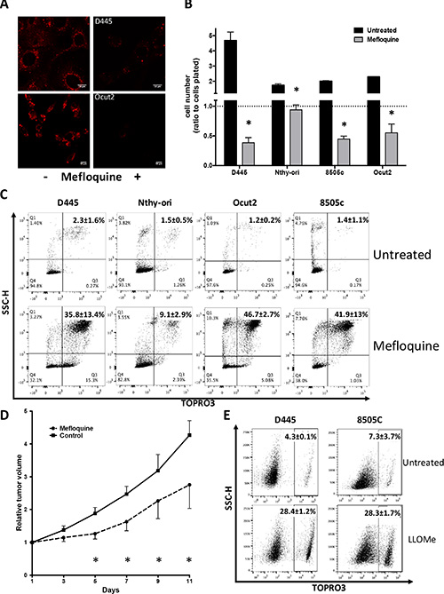 Mouse and human thyroid cancer cells are sensitive to lysosomal destabilization.