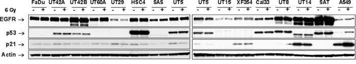 EGFR expression and p53 signaling in HNSCC cell lines.