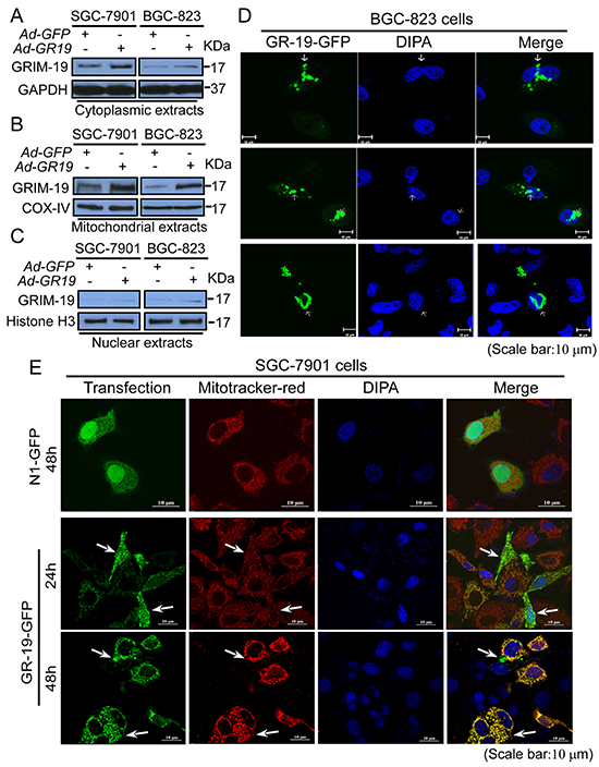 Subcellular redistribution of GRIM-19 is associated with its regulation to STAT3 nuclear distribution.