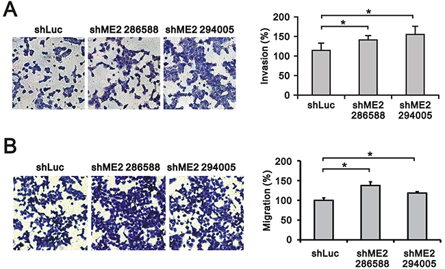 The effects of ME2 on invasion and migration in GBM8401 cells.