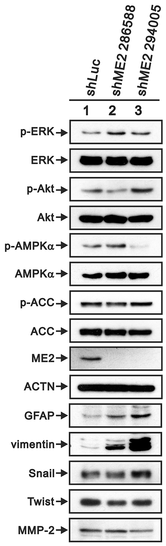 The effects of ME2 on the AMPK signaling and EMT pathways in GBM8401 cells.