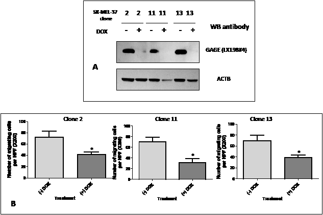 A: Western blot analysis of GAGE expression in double-stable Tet-On/GAGE shRNAmir clones, untreated (- DOX) or treated with doxycycline (+ DOX).