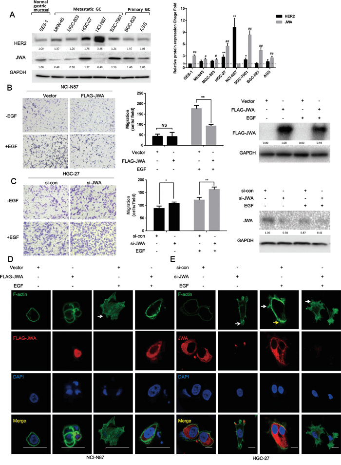 JWA inhibits cell migration and actin cytoskeletal rearrangement in HER2-overexpressing gastric cancer cells.