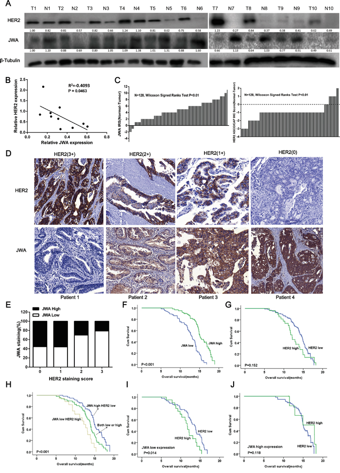 JWA is negatively associated with HER2 expression in gastric cancer (GC) tissue, and low JWA predicts a poor prognosis and stratifies a high-risk subgroup of HER-2-positive advanced gastric cancer (AGC).