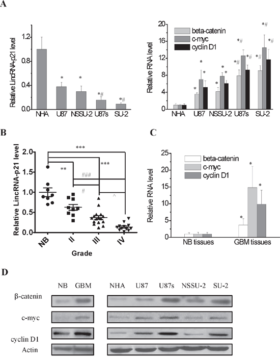 LincRNA-p21 expression level and Wnt/β-catenin signaling pathway activity in GBM and GSCs cell lines and GBM tissues.