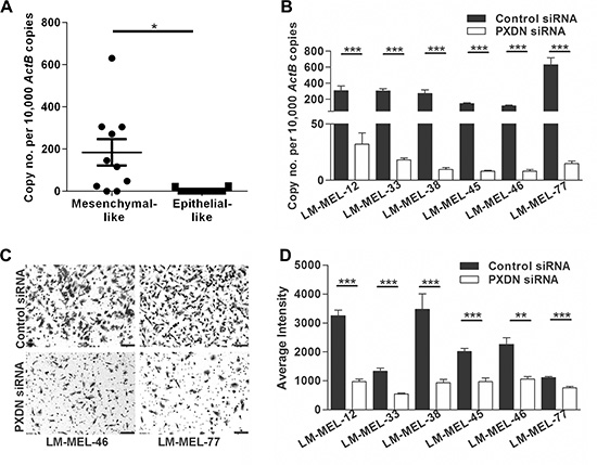 Silencing PXDN blocks in vitro invasion of melanoma cells.