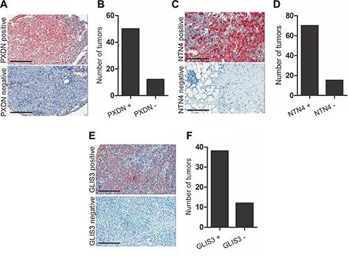 PXDN, NTN4 and GLIS3 immunostaining in melanoma tumor tissue.