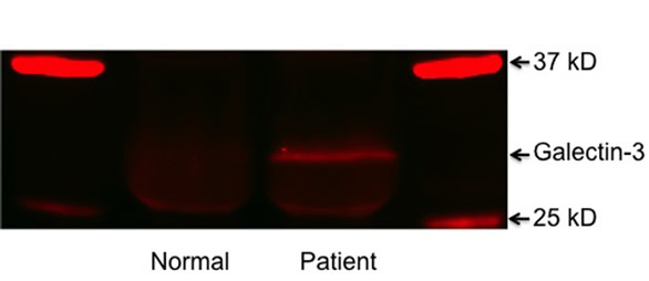 Detection of galectin-3 in sera of form normal male and PCa patient.