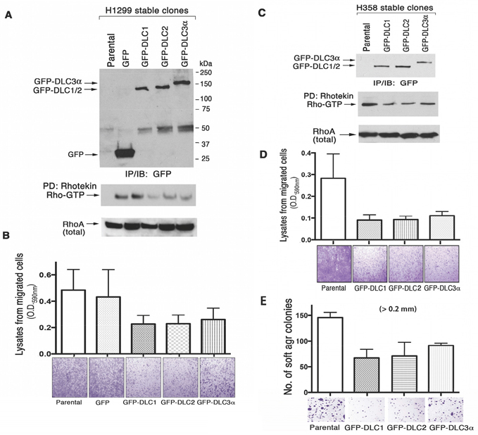 DLC RhoGAP and bioactivity in transfected human lung cancer cell lines.
