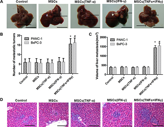 MSCs promoted liver metastasis of pancreatic adenocarcinoma in nude mice.