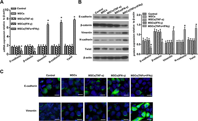 Pancreatic adenocarcinoma cells underwent EMT after co-culture with the culture supernatant of MSCs.