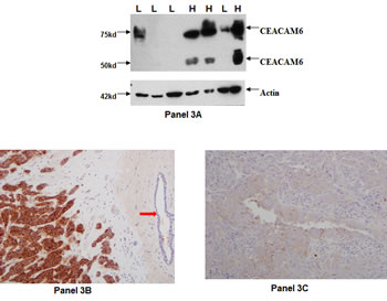 CEACAM6 protein expression in primary breast tumors: CEACAM6 specific antibody 9A6 was used to probe CEACAM6 protein expression by Western blot method.