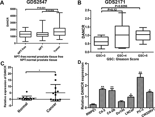 Expression of DANCR increases in human prostate cancer tissues and cell lines.