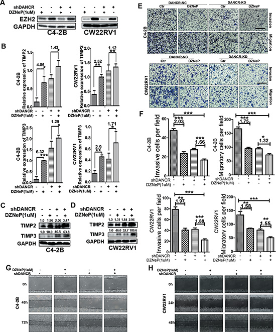 The inhibition of TIMP2/3 by DANCR depends on EZH2.