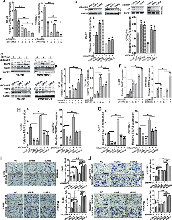 AR inhibits the expression of DANCR, up-regulates TIMP2/3 and suppresses invasion and migration of prostate cancer cells.