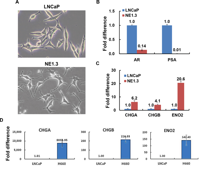 Androgen deprivation treatment (ADT) induces neuroendocrine differentiation in prostate cancer cells.