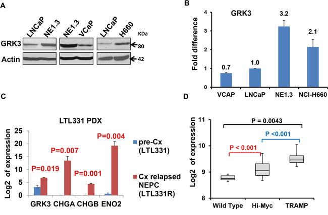 GRK3 is up-regulated in neuroendocrine prostate cancer (NEPC).