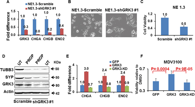 GRK3 controls neuroendocrine phenotypes of prostate cancer cells.
