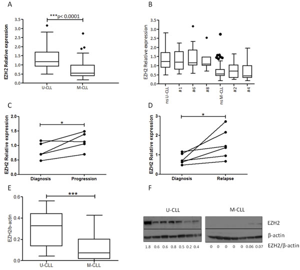 EZH2 is overexpressed in U-CLL at both the mRNA and protein level.