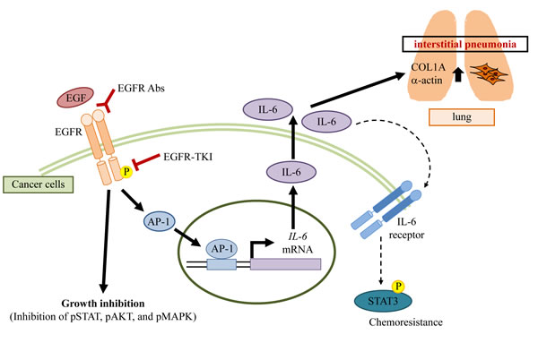 A potential mechanism of interstitial pneumonia induced by EGFR blocking.
