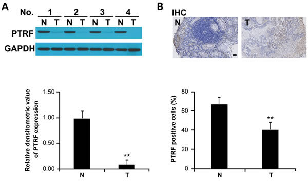 PTRF expression is decreased in human colorectal cancer tissues.