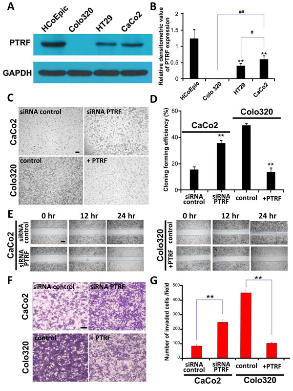 Expression of PTRF is differentially reduced in colorectal cancer cells and may be involve in regulating tumor progression.