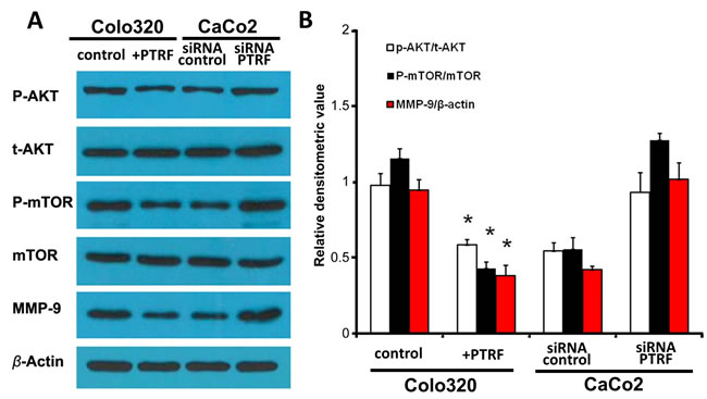 PTRF inhibits the AKT/mTOR signaling pathway in colorectal cancer cells.
