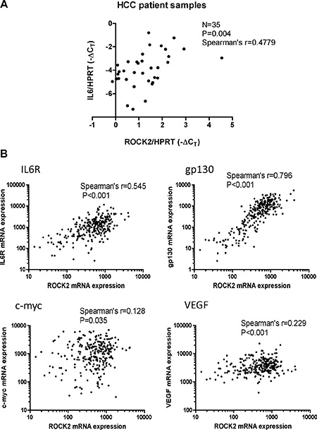 Clinical correlation of ROCK2 and activation of NF-κB and IL-6 signaling in HCC.