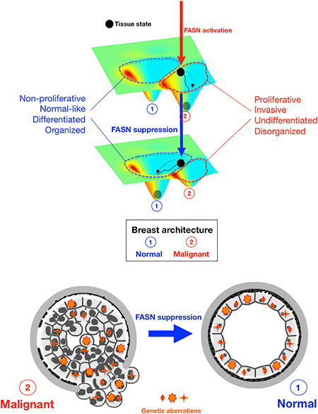 FASN-regulated phenotype of breast cancer tissues.