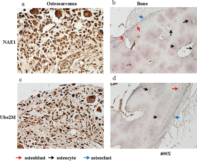 NAE1 and Ube2M levels are elevated in OS tumor tissues.