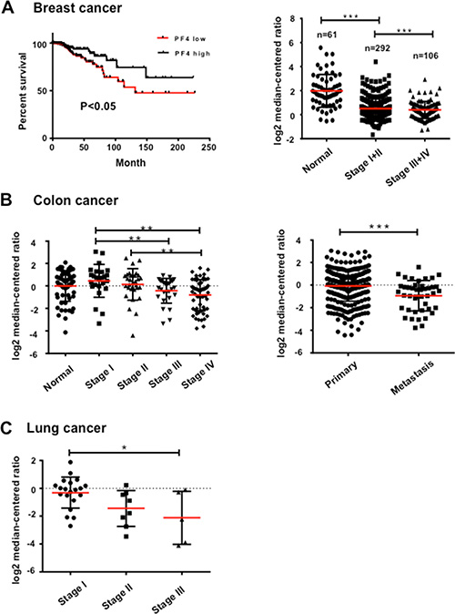 PF4 expression levels negatively correlate with human cancer progression.