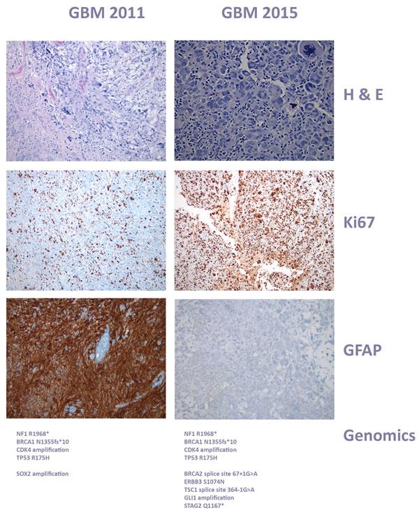 Histology of case 1, glioblastoma progression.
