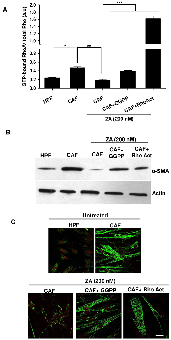 ZA inhibits RhoA prenylation/activation, thereby abrogating α-SMA organization and CAF activation.