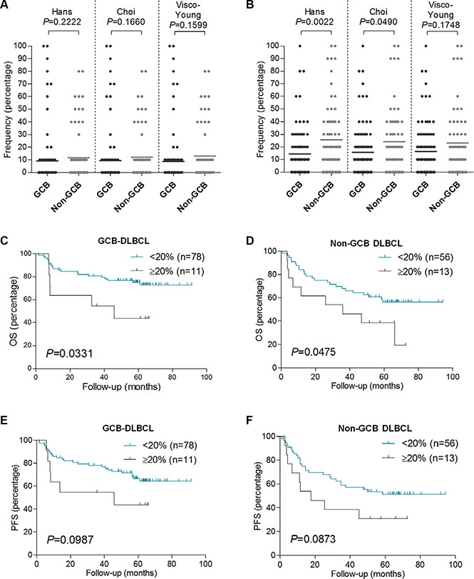 FOXP2 expression is not associated with non-GCB DLBCL primary cases, and it confers worse OS in GCB or non-GCB DLBCL subtypes.
