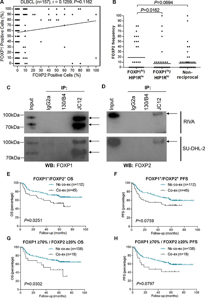 FOXP2 is co-immunoprecipitated by FOXP1 and their co-expression confers worse survival in R-CHOP-treated DLBCL cases.
